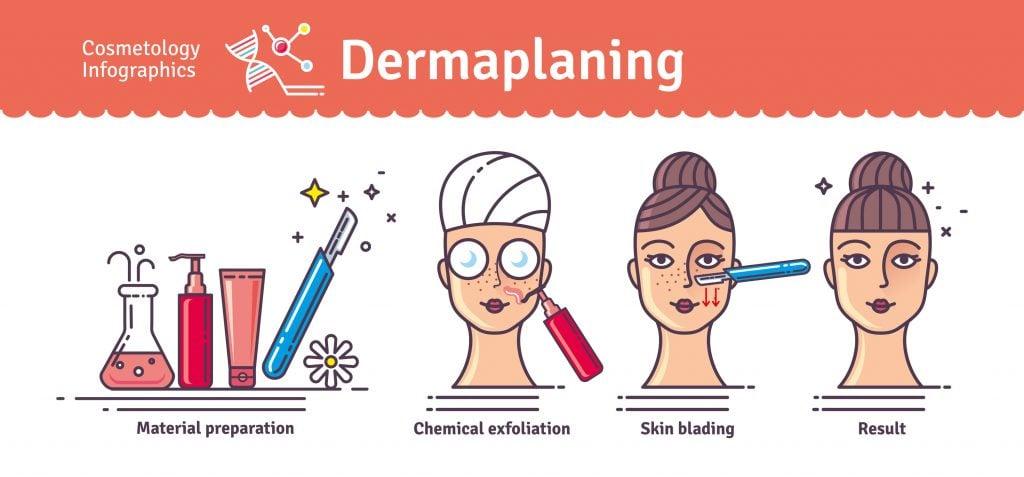 Dermaplaning infographic